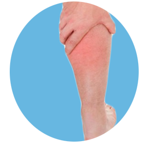 Leg Swelling Treatment