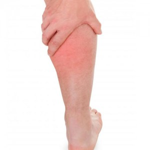 leg swelling treatment Oakville
