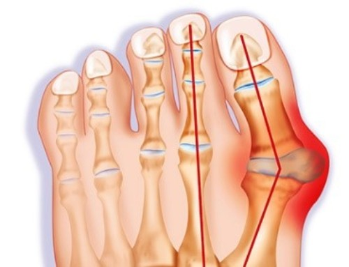 Bunion: Painful Lump At the Base of the Big Toe